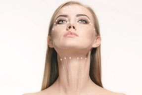 Ameliyatsız yüz ve vücut germe (Thread Lifting)